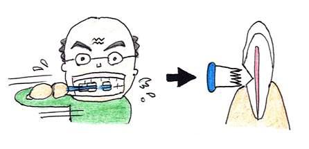 力強いゴシゴシ横みがきは、象牙質を削ります