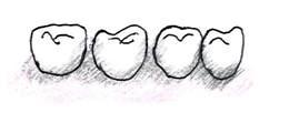 歯と歯の間と、歯と歯ぐきのさかい目